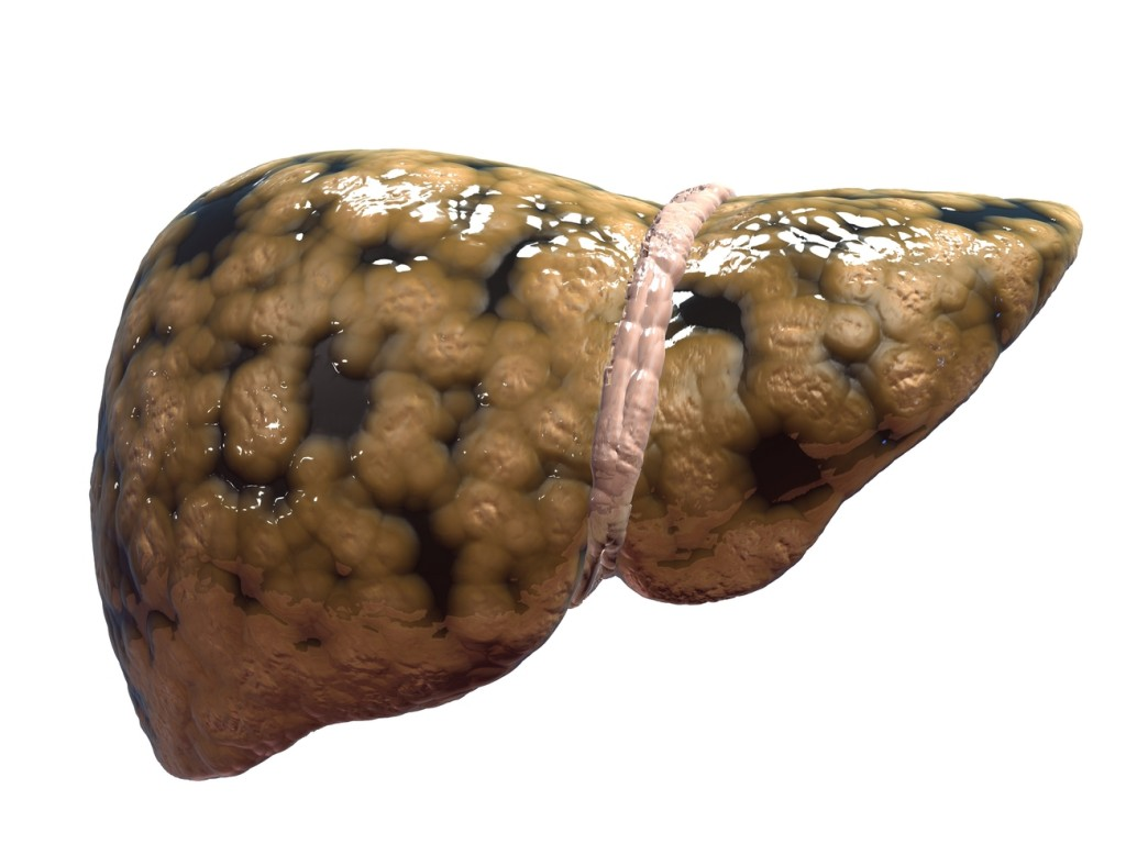 A graphic image of fatty liver disease.