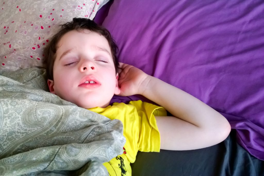 A young child aged around 3, 4 or 5 fast asleep, with untreated sleep apnea.