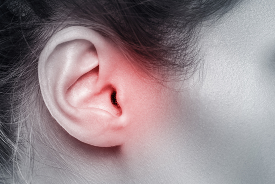 A woman experiences localized ear pain as a result of a ruptured ear drum.
